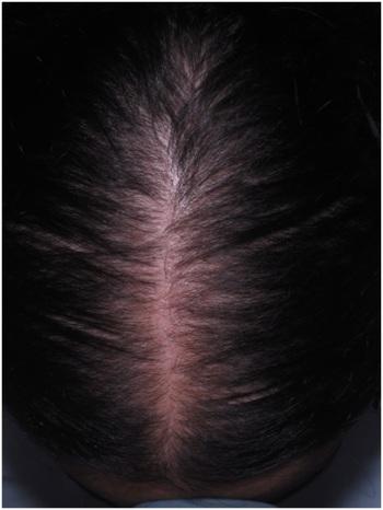queda-de-cabelos–efluvio-telogeno-dermatologia-e-saude