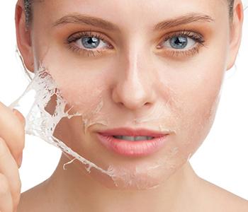 tipos-de-peelings-dermatologia-e-saude-350x300