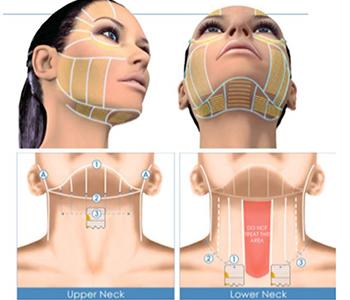 ultrassom-microfocado-dermatologia-e-saude-350x300