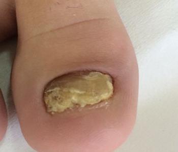Diabetes e a pele