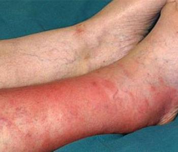 erisipela-dermatologia-e-saude-350x300