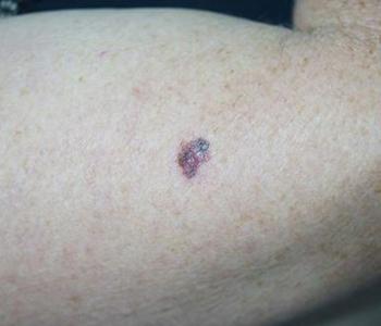 o-que-e-cancer-de-pele-e-seus-tipos-dermatologia-e-saude-350x300-1