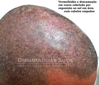 O couro cabeludo é protegido pelos cabelos, e suscetível a queimaduras na exposição após raspagem dos fios ou calvície ( alopecia androgenética)