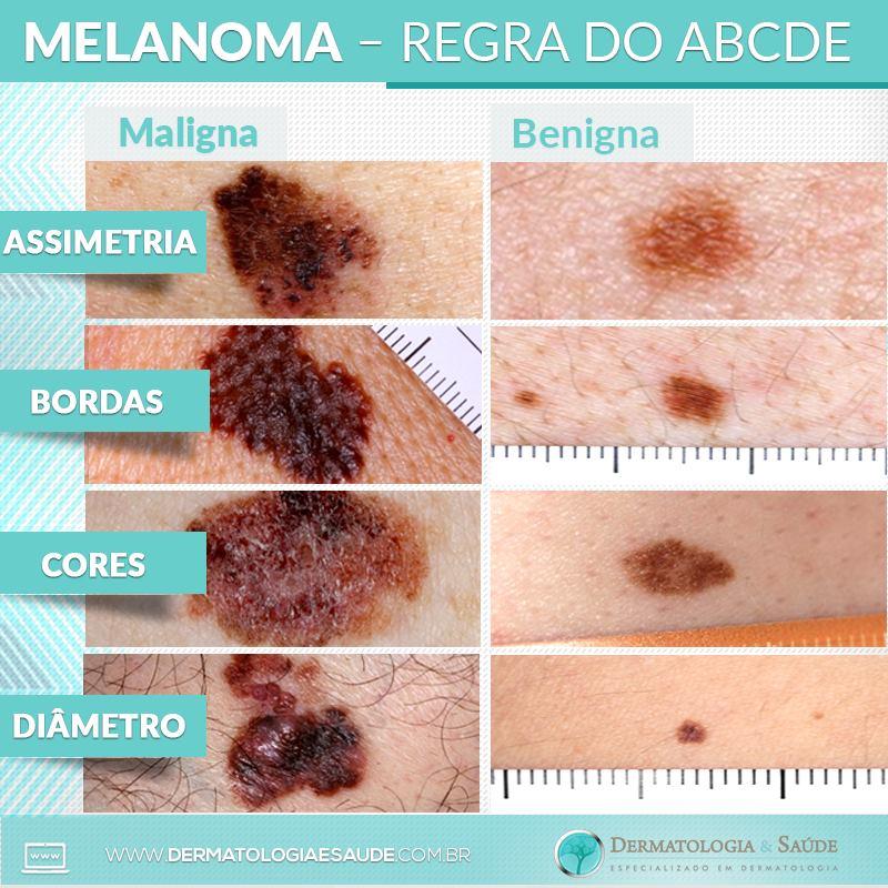 melanoma-regra-do-abcde-dermatologia-e-saude
