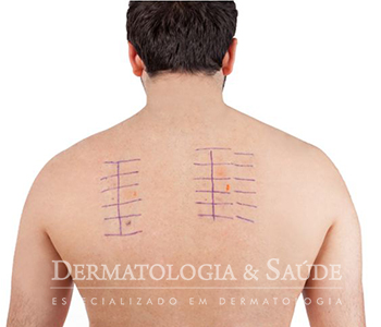 teste-de-contato-dermatologia-e-saude-2