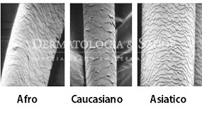 Formato dos fios de cabelos em cada raça e o aspecto microscópico das camadas