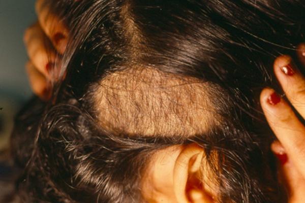 tricotilomania-dermatologia-e-saude (3)