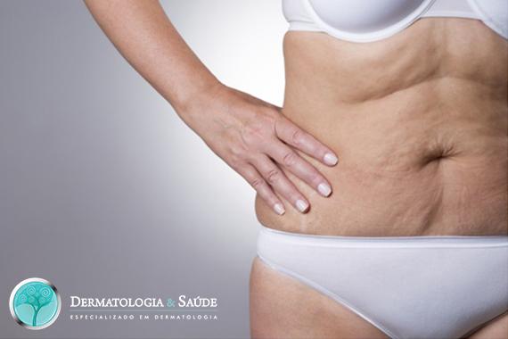Mulher com pele do abdômen flácida (Foto: Dollar Photo Club)