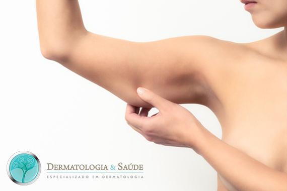 Mulher com pele do braço flácida (Foto: Dollar Photo Club)