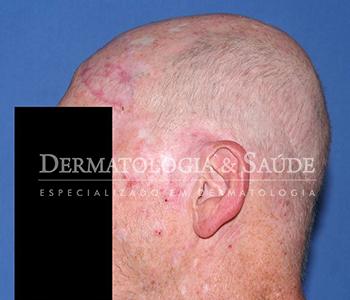 várias lesões de ceratoses actínicas