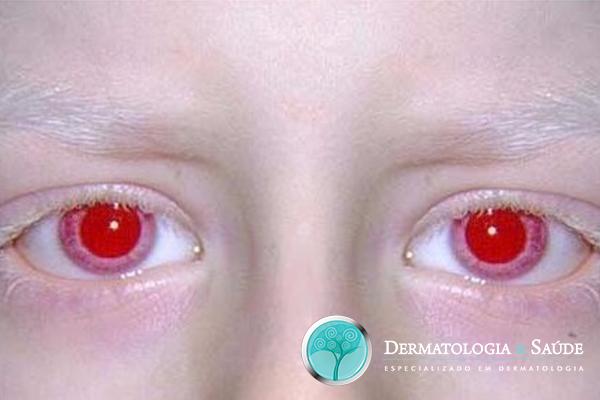 Os albinos possuem olhos azuis ou castanhos muito claros, às vezes, dão uma falsa impressão de serem vermelhos ou rosados