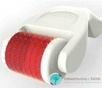 O microagulhamento pode ser feito utilizando-se vários tipos de dispositivos com agulhas que variam de 0,5 a 2,5 mm de comprimento.