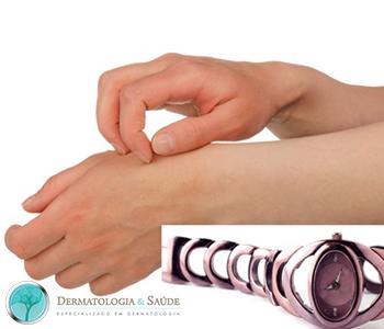 alergias-a-bijuterias-dermatologia-e-saude-1