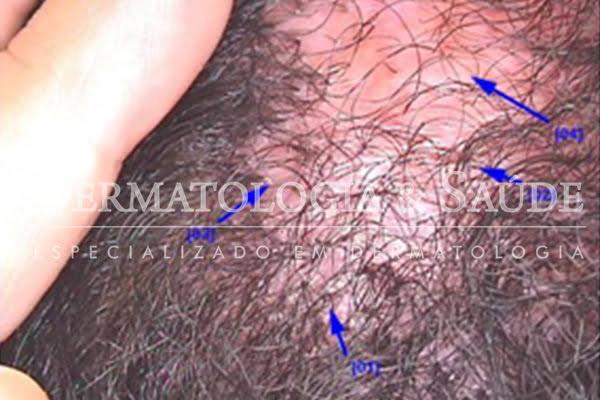 Foto 1 - A Foliculite Decalvante aparece como vermelhidão, crostas e bolinhas vermelhas na raiz dos cabelos.