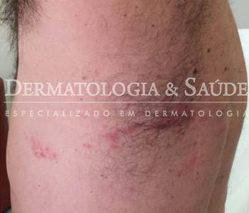 o-que-e-cobreiro-dermatrologia-e-saude-1