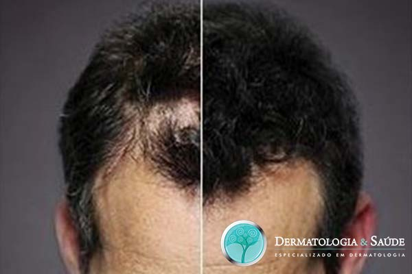 perdi-meus-cabelos-e-agora-dermatologia-e-saude-5