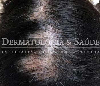 queda-de-cabelo-definitiva-alopecias-cicatriciais-dermatologia-e-saude-2