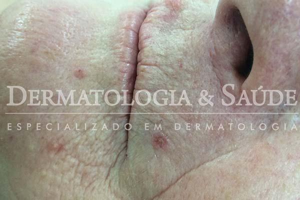 10-maneiras-de-suspeitar-que-voce-esta-com-cancer-de-pele-dermatologia-e-saude-1