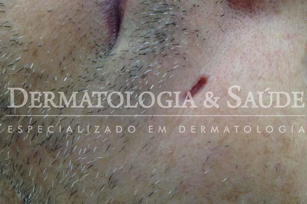 10-maneiras-de-suspeitar-que-voce-esta-com-cancer-de-pele-dermatologia-e-saude-11