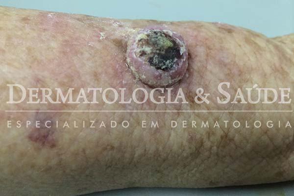 10-maneiras-de-suspeitar-que-voce-esta-com-cancer-de-pele-dermatologia-e-saude-13
