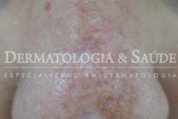 10-maneiras-de-suspeitar-que-voce-esta-com-cancer-de-pele-dermatologia-e-saude-17
