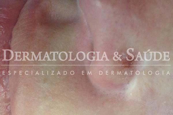 10-maneiras-de-suspeitar-que-voce-esta-com-cancer-de-pele-dermatologia-e-saude-19