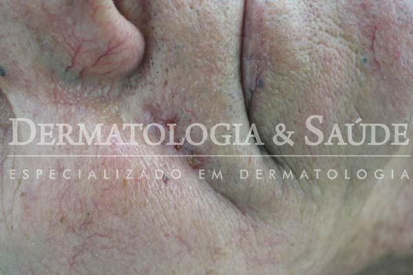 10-maneiras-de-suspeitar-que-voce-esta-com-cancer-de-pele-dermatologia-e-saude-3