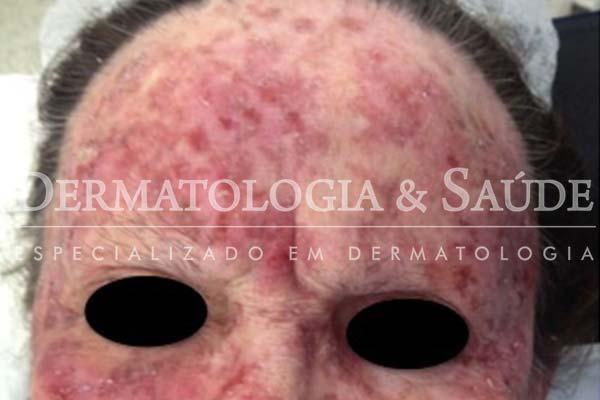 10-maneiras-de-suspeitar-que-voce-esta-com-cancer-de-pele-dermatologia-e-saude-7