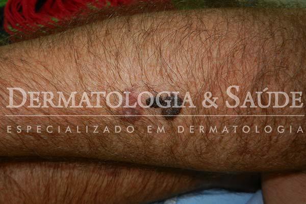 10-maneiras-de-suspeitar-que-voce-esta-com-cancer-de-pele-dermatologia-e-saude-9