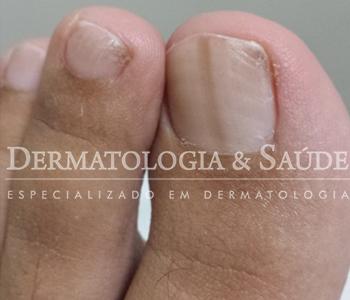 mancha-escura-na-unha-e-perigoso-dermatologia-e-saude-3