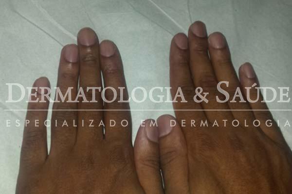 Faixas marrons em todas as unhas das mãos – melanoníquia racial