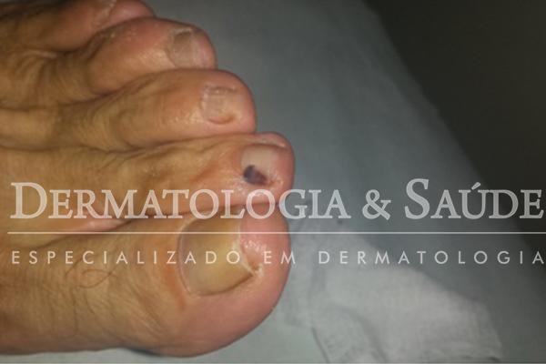 Hematoma causado por sapato apertado