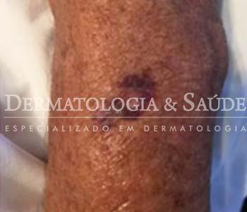 porque-comecaram-a-aparecer-manchas-roxas-nos-meus-bracos-dermatologia-e-saude-2