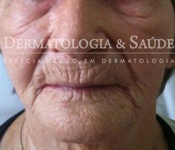 paciente com envelhecimento intenso da pele