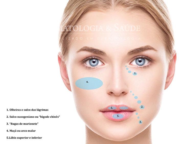 Botox e preenchimento: Qual a diferença?