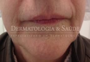 Contorno inferior do rosto