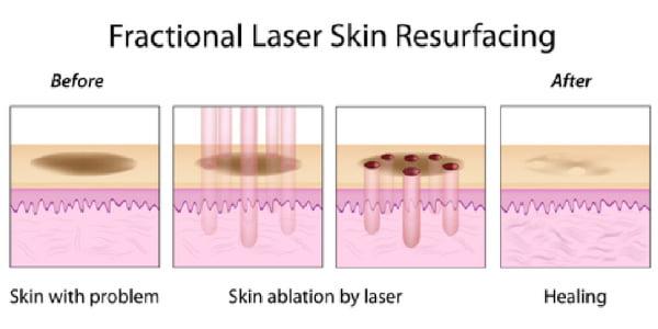 Laser fracionado