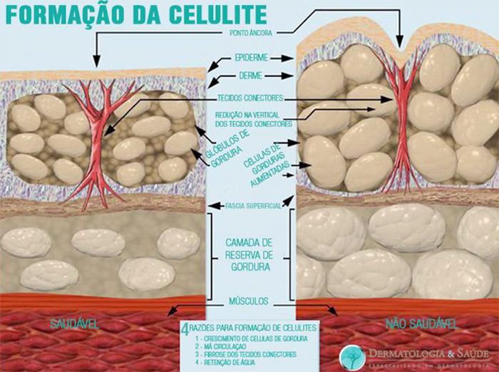 Formação da celulite