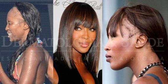 Naomi Campbell com uma extensa área de alopecia frontal aparente