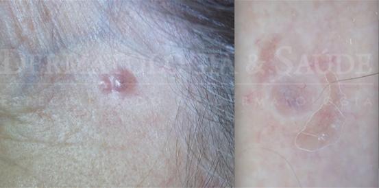 Câncer de pele coça ou dói?
