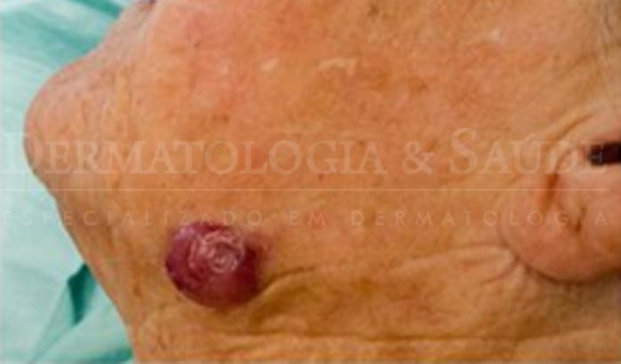 O Carcinoma de Células de Merkel acomete principalmente as áreas de pele expostas ao sol.