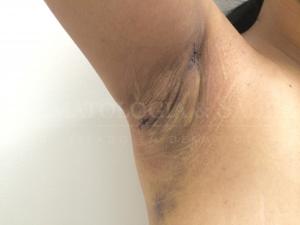 Imobilizar a cicatriz