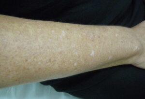leucodermias-gutatas