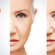 O açúcar e o envelhecimento da pele