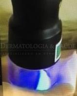 Vitiligo e Laser