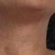 Neurofibromatose e pele