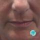 Como tratar rugas ao redor da boca