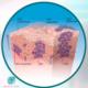 Ceratoses actínicas: lesões precursoras de câncer de pele