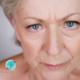 Como melhorar rugas entre as sobrancelhas