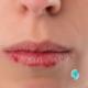 Saiba como câncer de boca ou infecção no dente podem dar feridas na pele